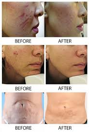 Before and After Skin Needling